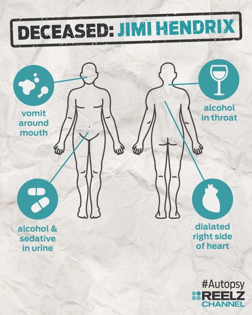 autopsy_infographic_jimihendrix_blank
