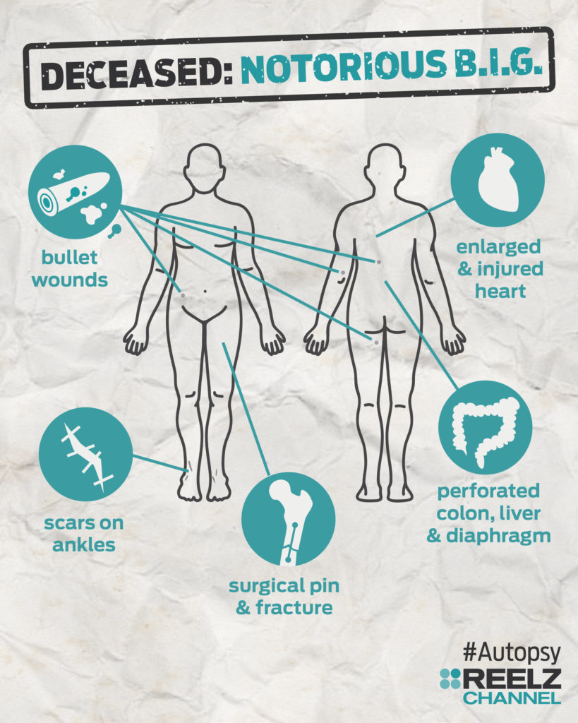autopsy_infographic_notoriousbig_blank